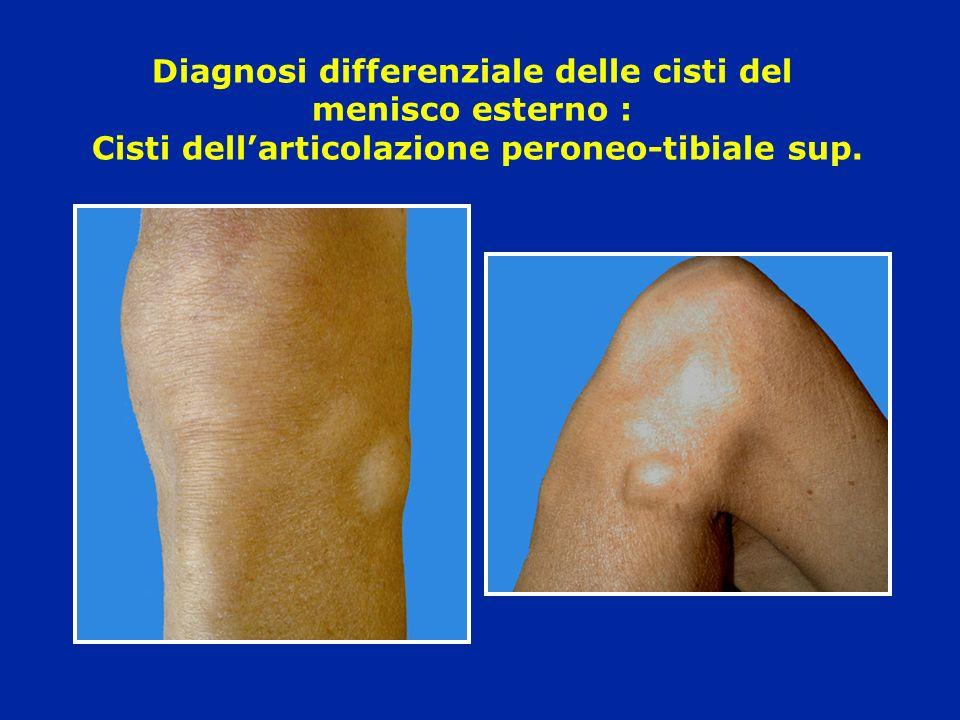 Diagnosi differenziale delle cisti del menisco esterno : Cisti dellarticolazione peroneo-tibiale sup.