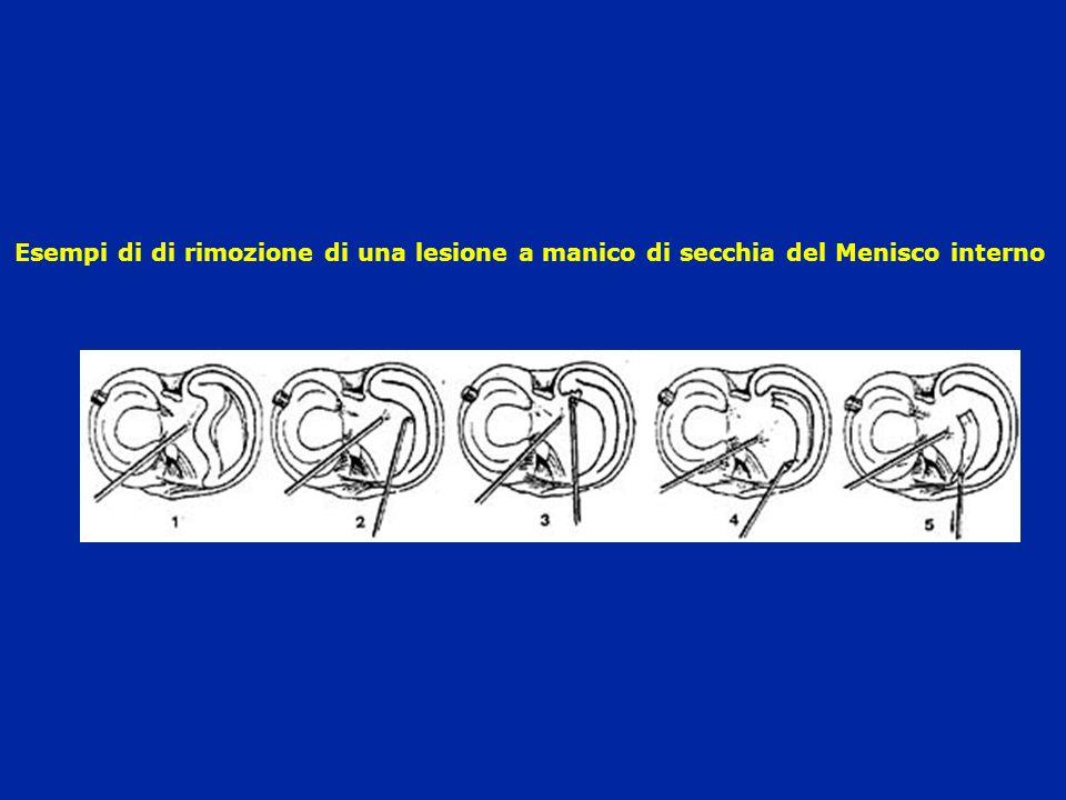 Esempi di di rimozione di una lesione a manico di secchia del Menisco interno