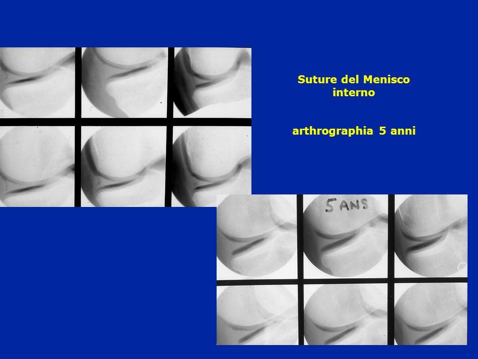 Suture del Menisco interno arthrographia 5 anni