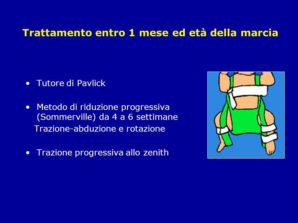 Trattamento entro 1 mese ed età della marcia Tutore di Pavlick Metodo di riduzione progressiva (Sommerville) da 4 a 6 settimane Trazione-abduzione e rotazione Trazione progressiva allo zenith