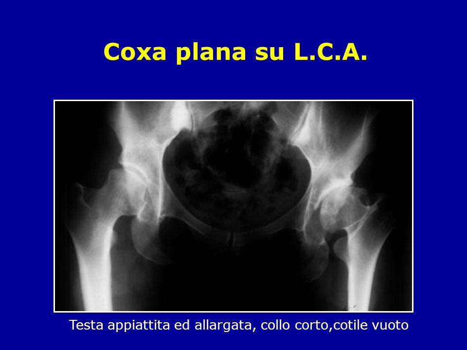 Coxa plana su L.C.A. Testa appiattita ed allargata, collo corto,cotile vuoto