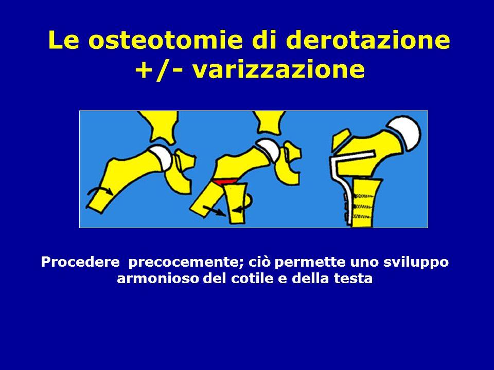 Le osteotomie di derotazione +/- varizzazione Procedere precocemente; ciò permette uno sviluppo armonioso del cotile e della testa