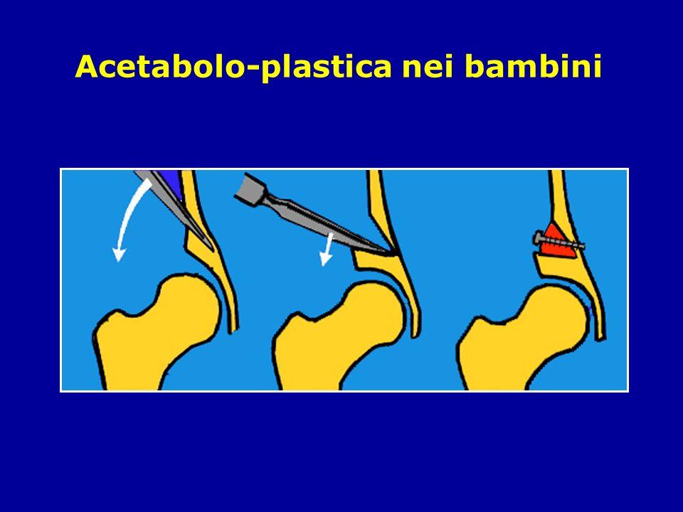 Acetabolo-plastica nei bambini