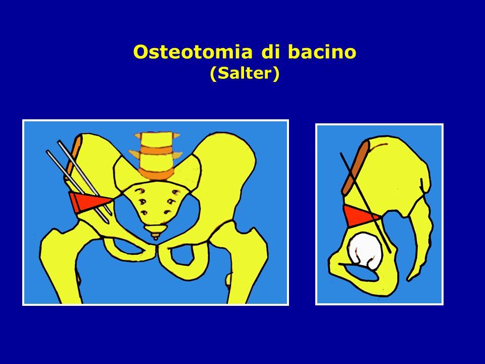 Osteotomia di bacino (Salter)
