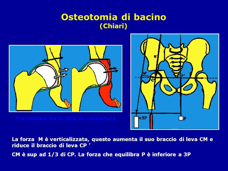 Osteotomia di bacino (Chiari) Translation de la tête et couverture La forza M è verticalizzata, questo aumenta il suo braccio di leva CM e riduce il braccio di leva CP CM è sup ad 1/3 di CP.