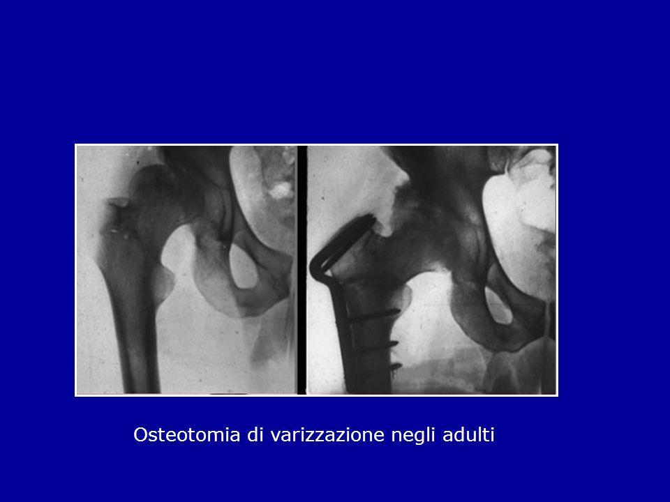 Osteotomia di varizzazione negli adulti