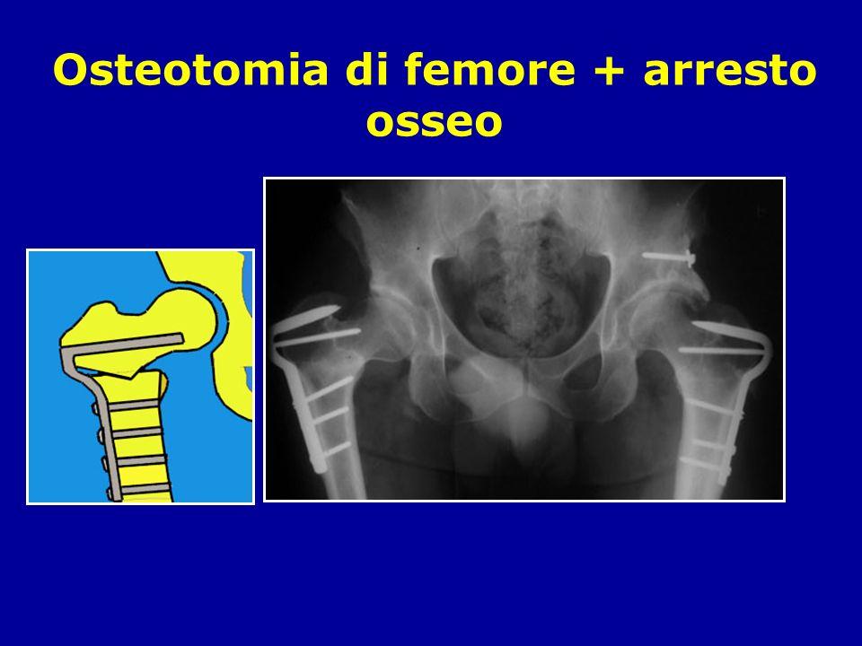 Osteotomia di femore + arresto osseo
