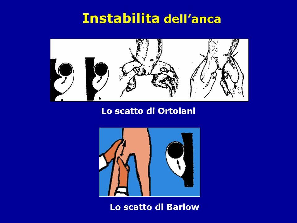 Lo scatto di Ortolani Lo scatto di Barlow Instabilita dellanca