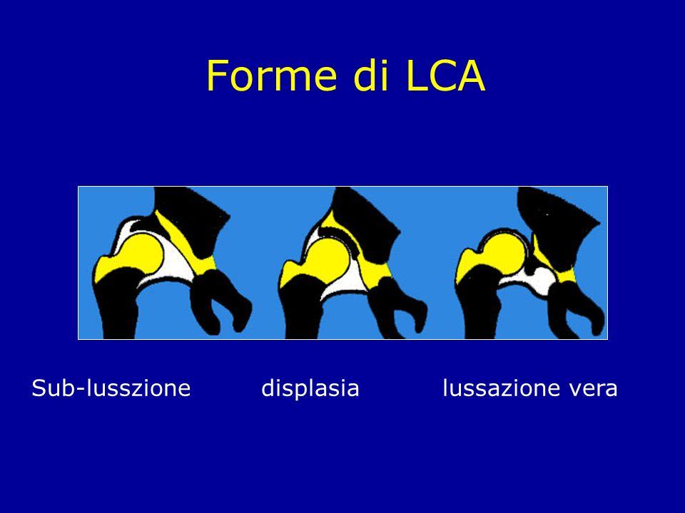 Forme di LCA Sub-lusszione displasialussazione vera