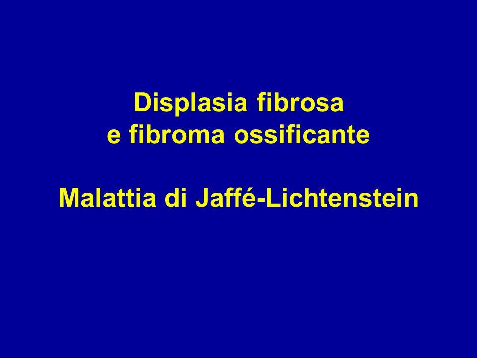 Displasia fibrosa e fibroma ossificante Malattia di Jaffé-Lichtenstein