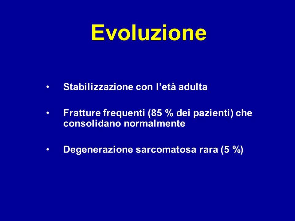 Evoluzione Stabilizzazione con letà adulta Fratture frequenti (85 % dei pazienti) che consolidano normalmente Degenerazione sarcomatosa rara (5 %)