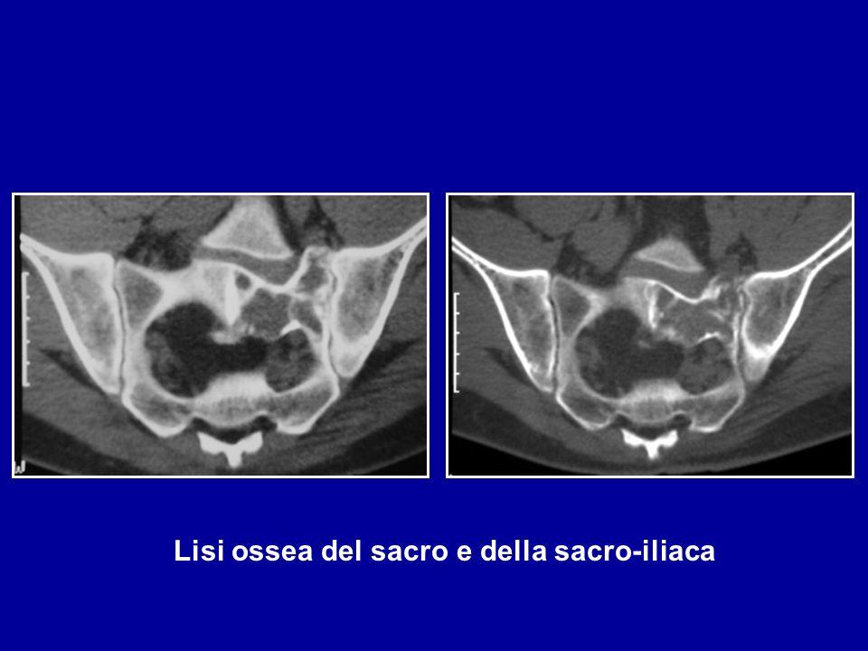 Displasia fibrosa D: 30 anni : Dolori durante la corsa