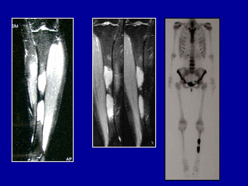 Post-op1 anno Sportello di circa 14 cm, raschiamento e riempimento (sostituti ossei)