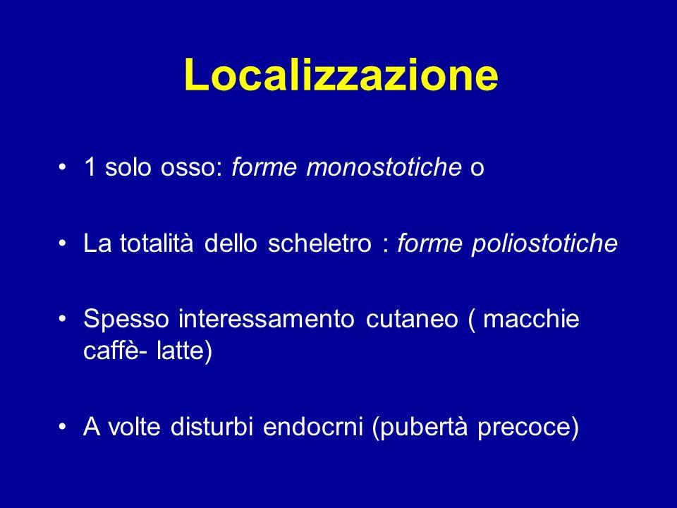 Localizzazione 1 solo osso: forme monostotiche o La totalità dello scheletro : forme poliostotiche Spesso interessamento cutaneo ( macchie caffè- latte) A volte disturbi endocrni (pubertà precoce)
