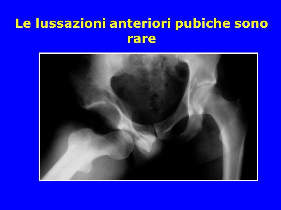 Lussazione posteriore