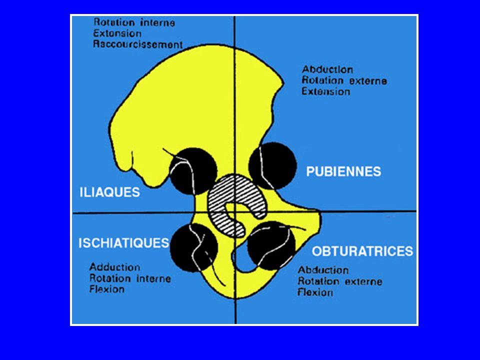 Lussazione posteriore iliaca o ischiatica Le più frequenti Trauma diretto sul ginocchio, con anche flesse ed addotte (trauma da cruscotto)