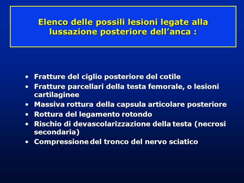 Lesioni associate Fratture del ciglio cotiloideo posteriore Fratture parcellari della testa Paralisi del nervo sciatico