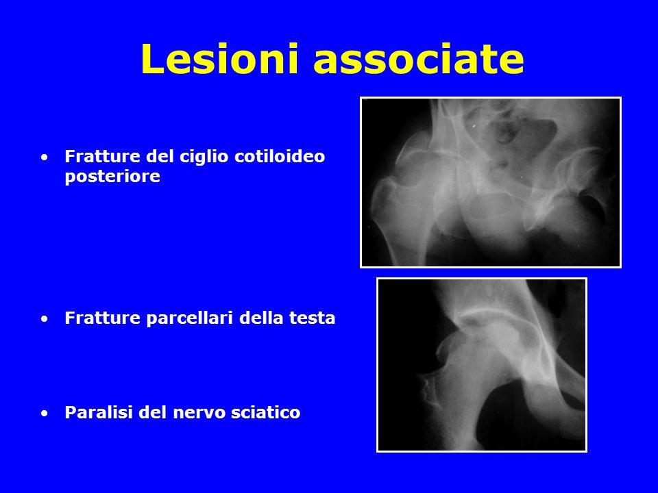 Lesioni associate –Rotture del LCP –Frattura della rotula