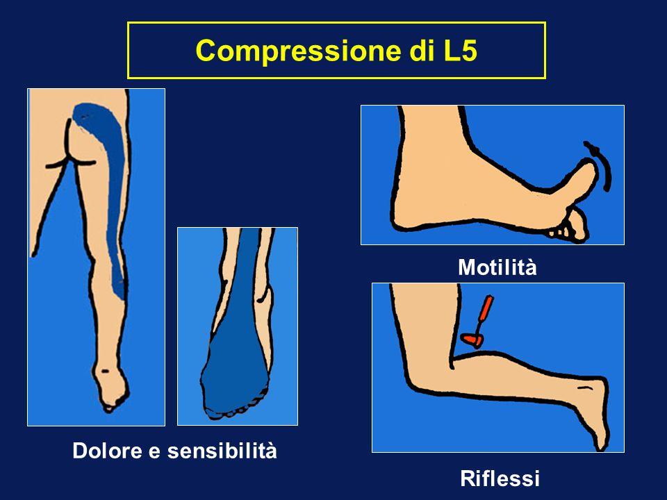 Compressione di L5 Dolore e sensibilità Motilità Riflessi