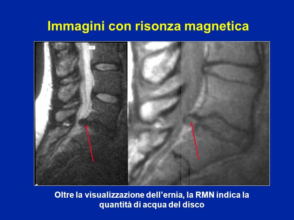 Oltre la visualizzazione dellernia, la RMN indica la quantità di acqua del disco Immagini con risonza magnetica
