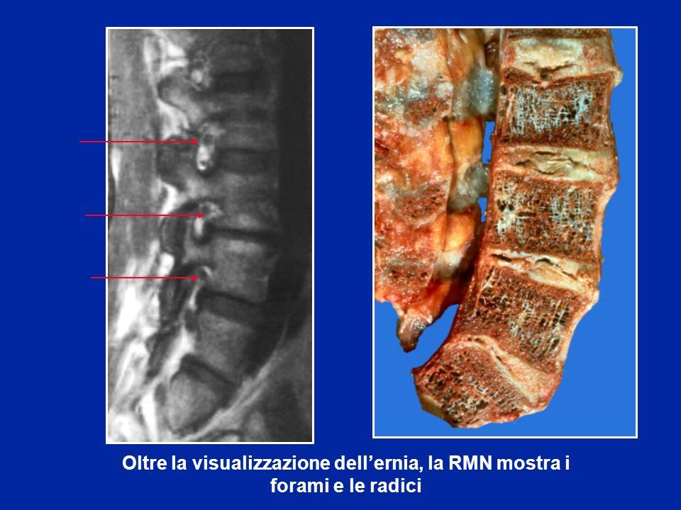 Oltre la visualizzazione dellernia, la RMN mostra i forami e le radici