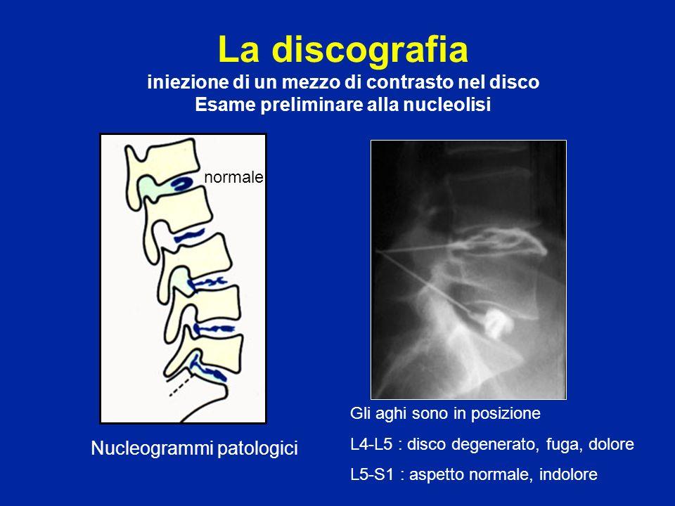 La discografia iniezione di un mezzo di contrasto nel disco Esame preliminare alla nucleolisi Nucleogrammi patologici normale Gli aghi sono in posizio
