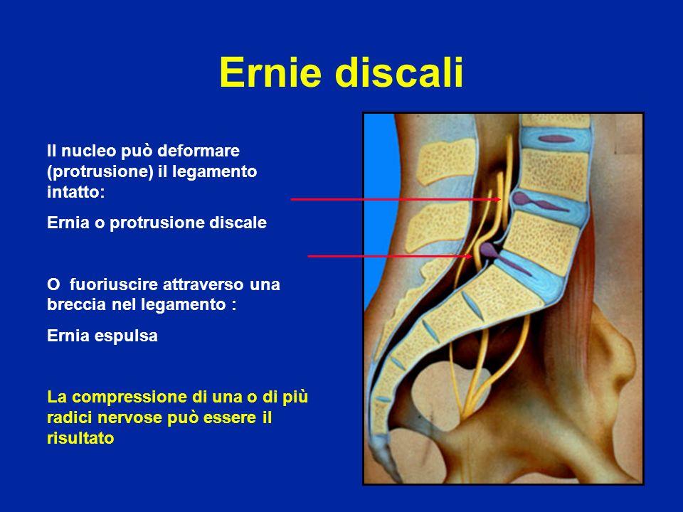 Ernie discali Il nucleo può deformare (protrusione) il legamento intatto: Ernia o protrusione discale O fuoriuscire attraverso una breccia nel legamen