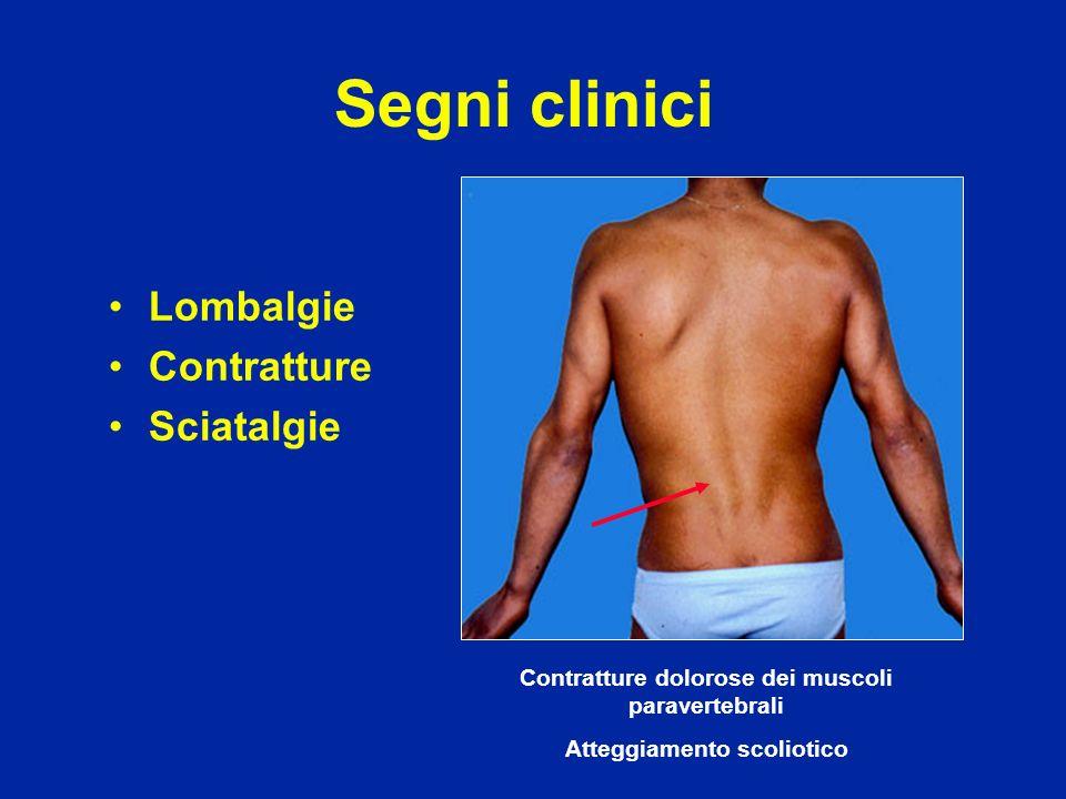 Segni clinici Lombalgie Contratture Sciatalgie Contratture dolorose dei muscoli paravertebrali Atteggiamento scoliotico