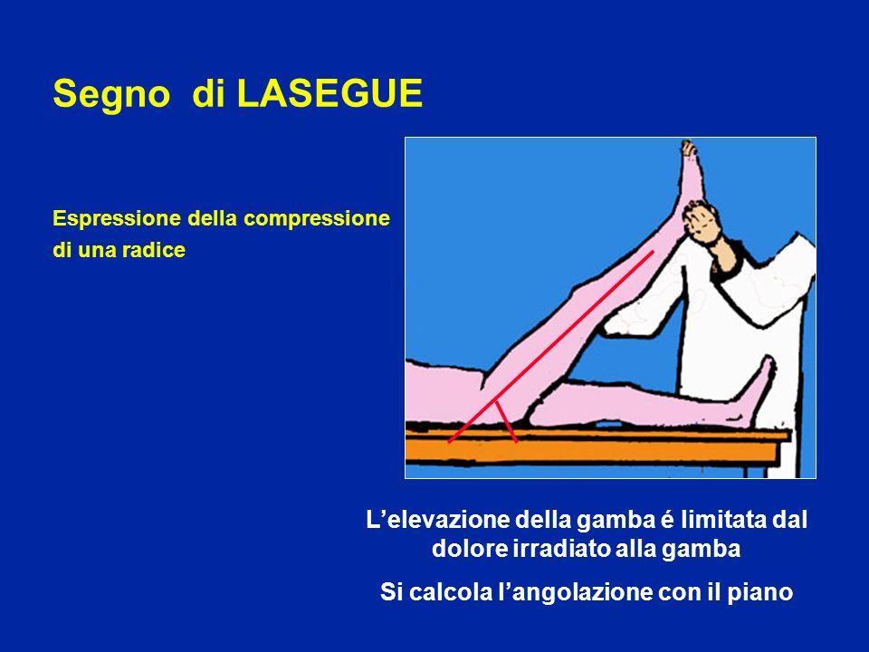 Segno di LASEGUE Espressione della compressione di una radice Lelevazione della gamba é limitata dal dolore irradiato alla gamba Si calcola langolazio