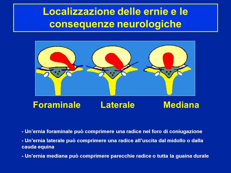 Foraminale Laterale Mediana - Unernia foraminale può comprimere una radice nel foro di coniugazione - Unernia laterale può comprimere una radice allus