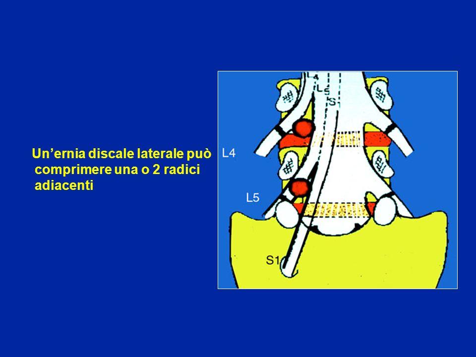 Unernia discale laterale può comprimere una o 2 radici adiacenti