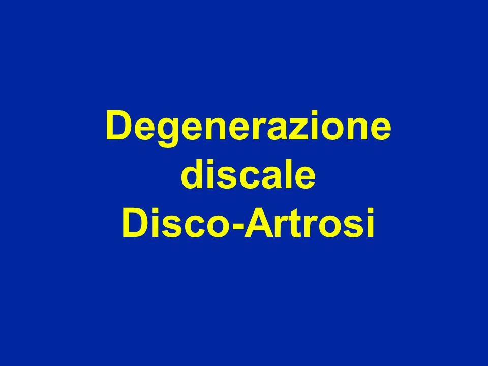 Degenerazione del disco (perdita del suo contenuto dacqua) Disco giovane Disco di 75 anni
