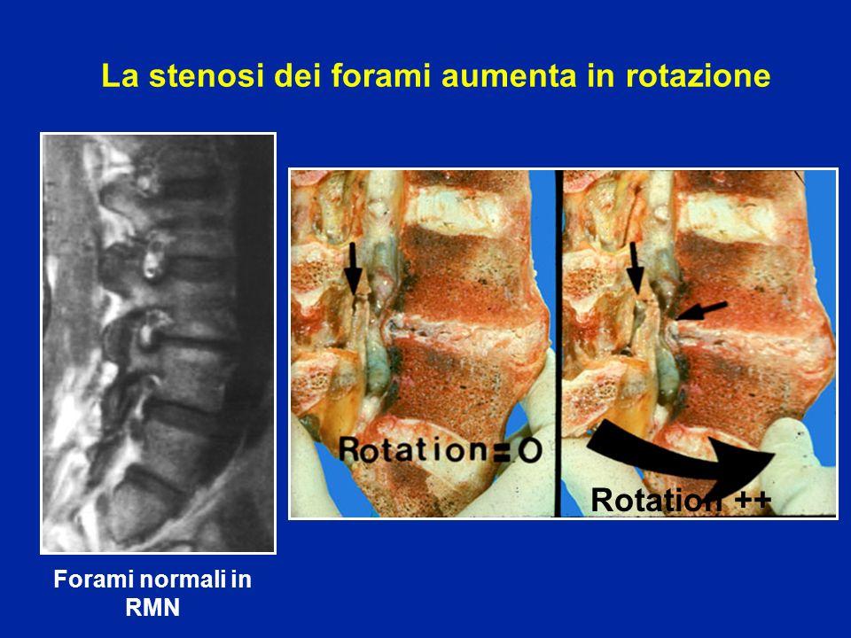 La stenosi dei forami aumenta in rotazione Forami normali in RMN Rotation ++