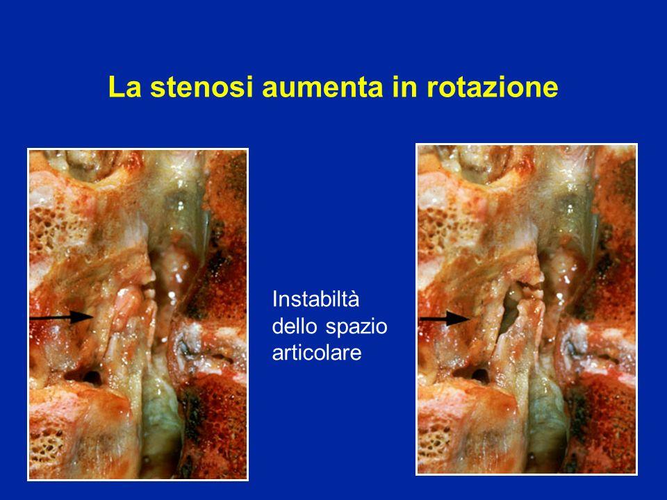 La stenosi aumenta in rotazione Instabiltà dello spazio articolare