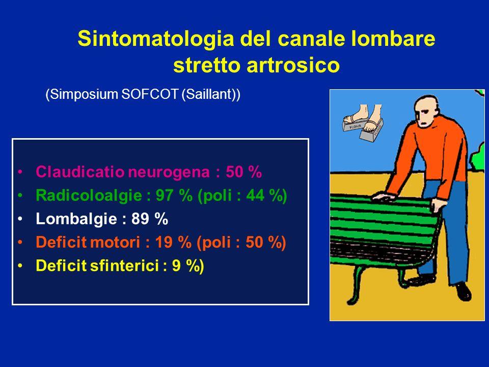Sintomatologia del canale lombare stretto artrosico Claudicatio neurogena : 50 % Radicoloalgie : 97 % (poli : 44 %) Lombalgie : 89 % Deficit motori :