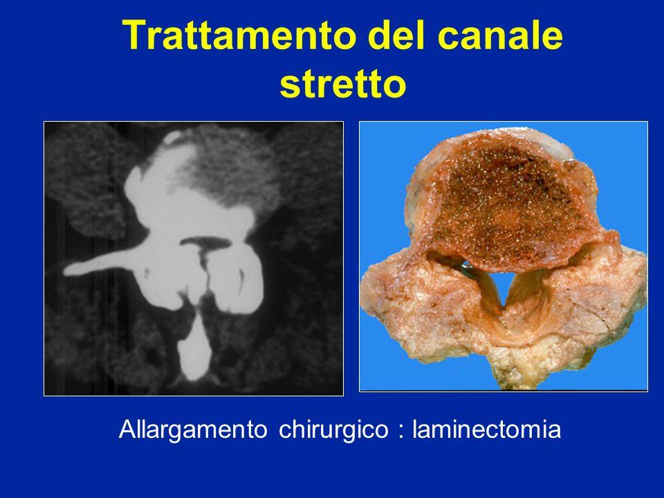 Trattamento del canale stretto Allargamento chirurgico : laminectomia