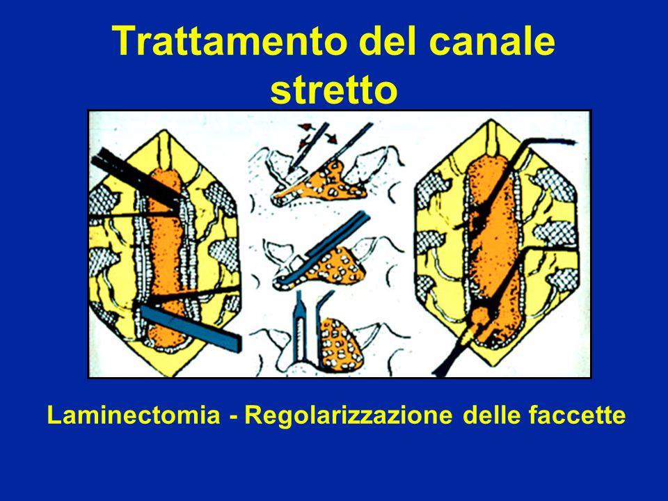 Laminectomia - Regolarizzazione delle faccette Trattamento del canale stretto