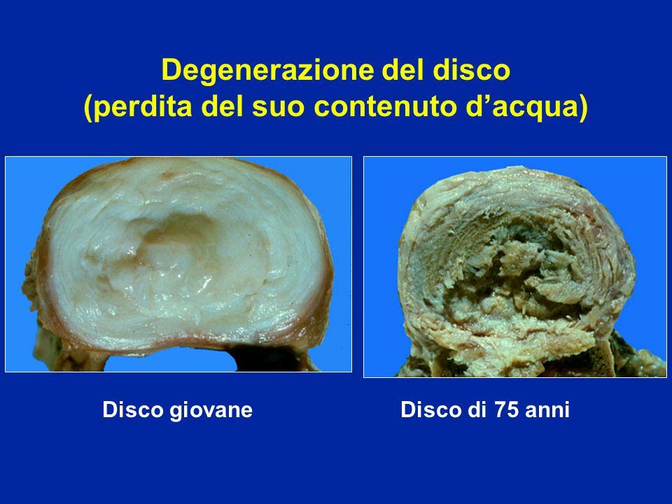 Differenti stadi della discopatia Artrosi con osteofiti Inter somatici