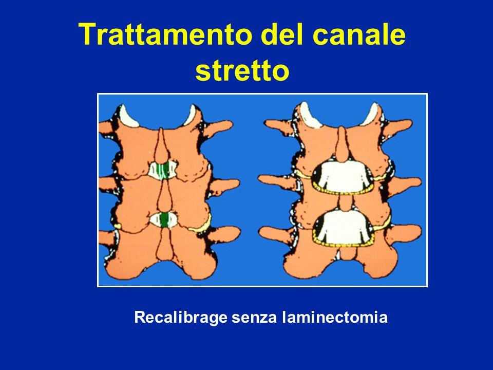 Recalibrage senza laminectomia Trattamento del canale stretto