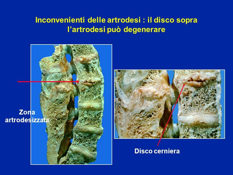Inconvenienti delle artrodesi : il disco sopra lartrodesi può degenerare Zona artrodesizzata Disco cerniera