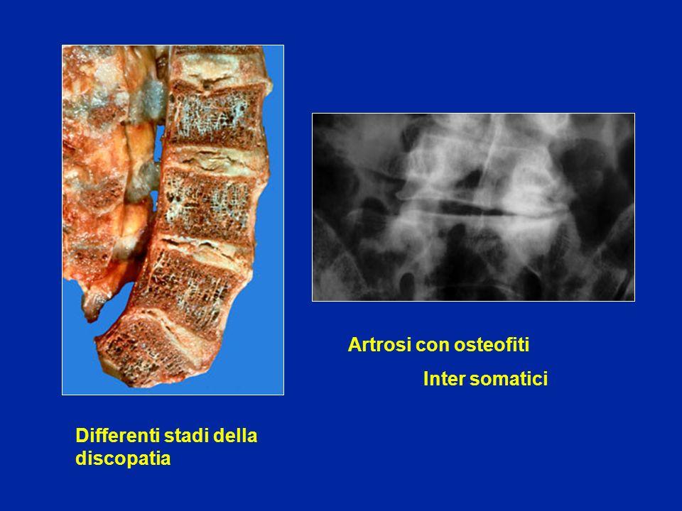 Laminectomia e stabilizzazione con artrodesi intersomatica realizzata con lo stesso accesso posteriore a 2 livelli Canale lombare stretto con stenosi a più livelli e degenerazione discale + instabilità