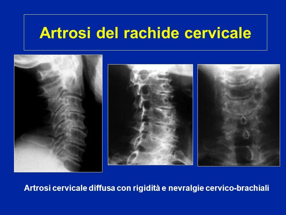 Artrosi del rachide cervicale Artrosi cervicale diffusa con rigidità e nevralgie cervico-brachiali