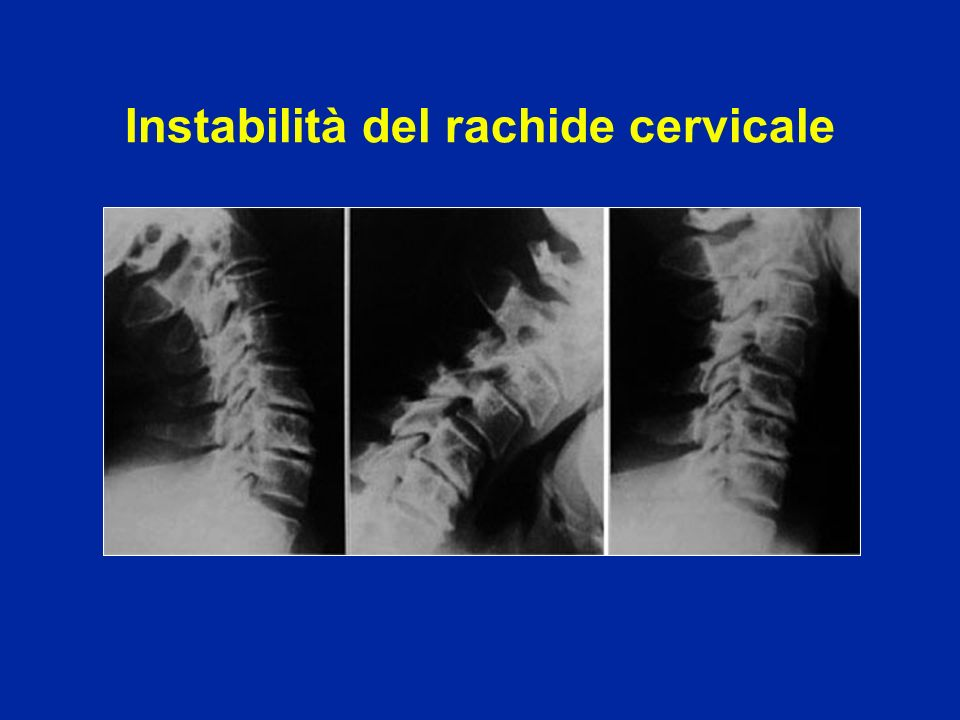 Instabilità del rachide cervicale