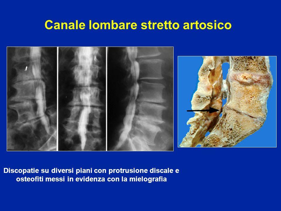 Discopatie su diversi piani con protrusione discale e osteofiti messi in evidenza con la mielografia Canale lombare stretto artosico