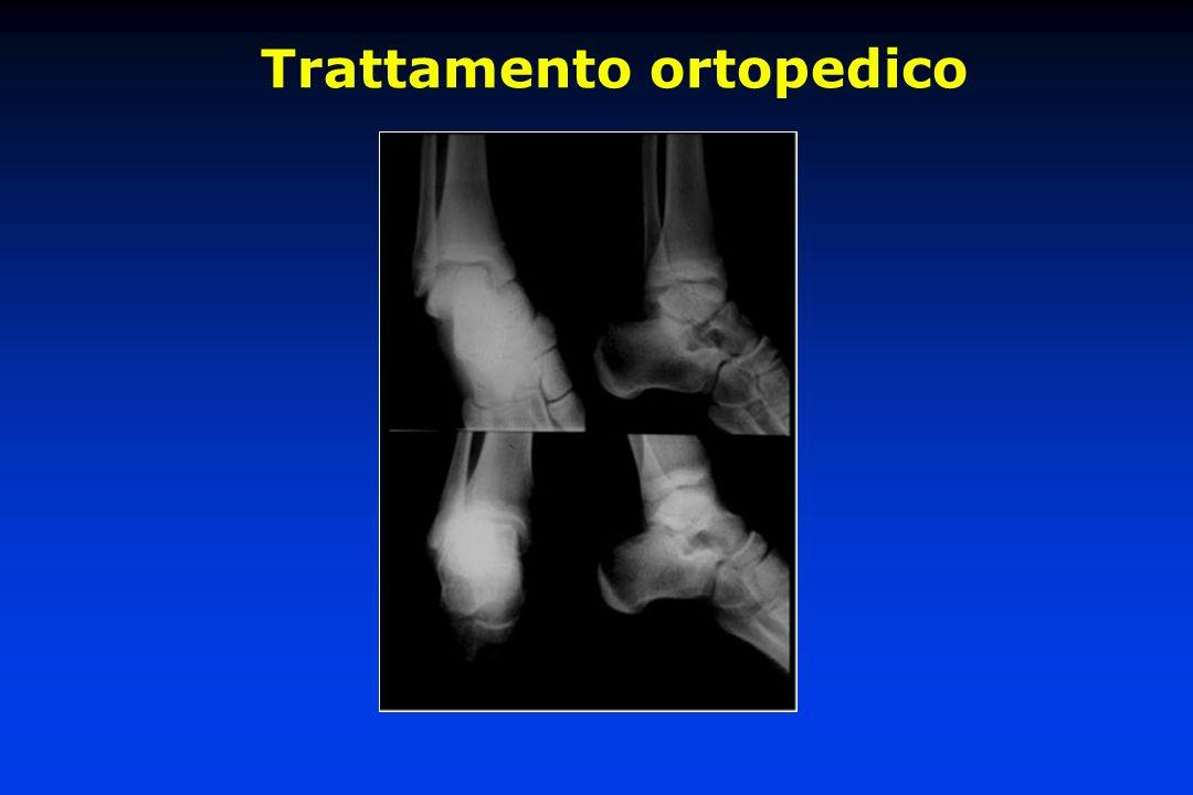 Trattamento chirurgico delle fratture dellastragalo Osteosintesi delle fratture scomposte parcellari e totali