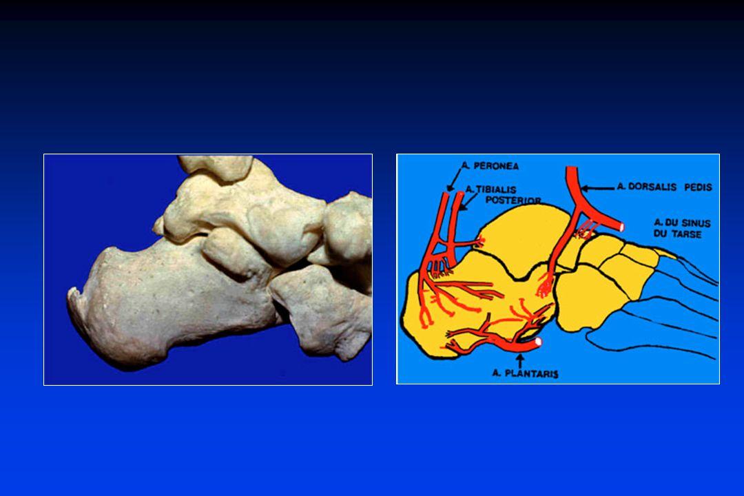 Fratture parcellari dellastragalo Tubercolo posteriore Testacupola astragalica (distorsione di caviglia)