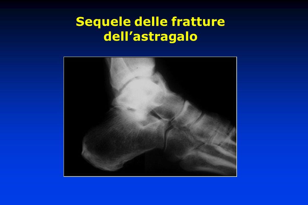 Artrodesi tibio-astragalica Astragalectomia Nécrosi o artrosi