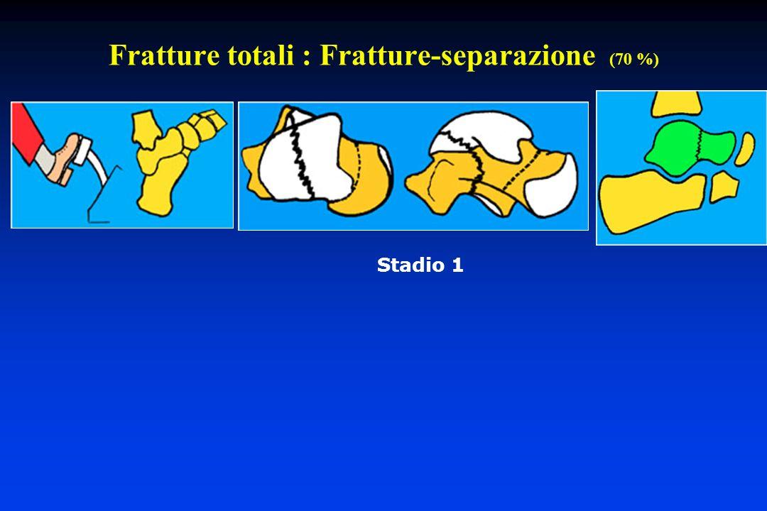 Fratture totali : Fratture-separazione (70 %) Stadio 1