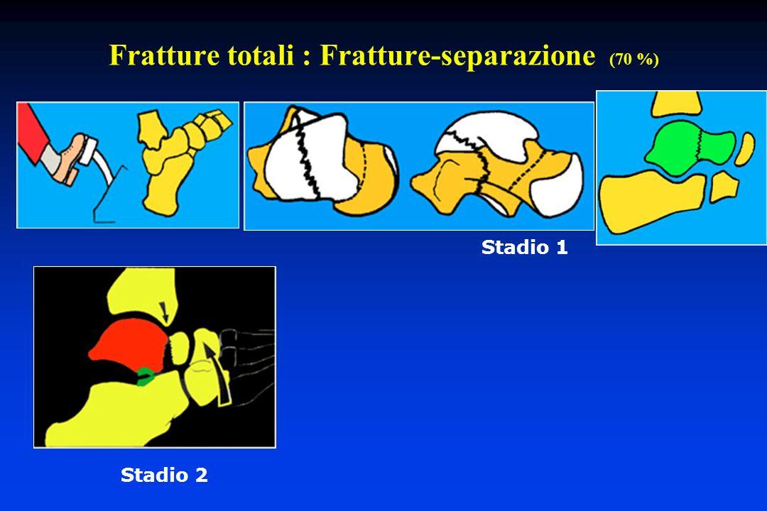 Fratture totali : Fratture-separazione (70 %) Stadio 1 Stadio 2
