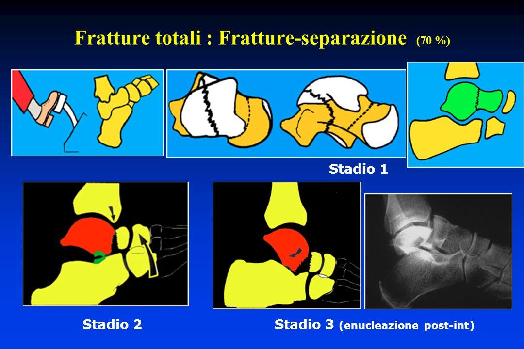 Fratture totali : Fratture-separazione (70 %) Stadio 1 Stadio 2 Stadio 3 (enucleazione post-int)